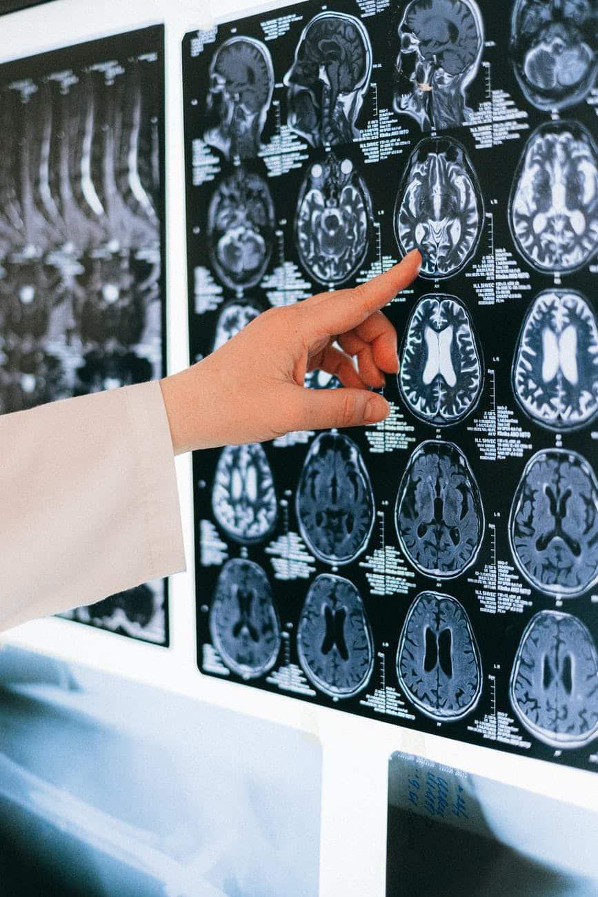 cerveau dépression